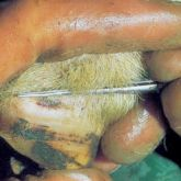 Sheep's foot with 6-day-old lesion on coronary band. Note scab formation and rapid rate of healing.